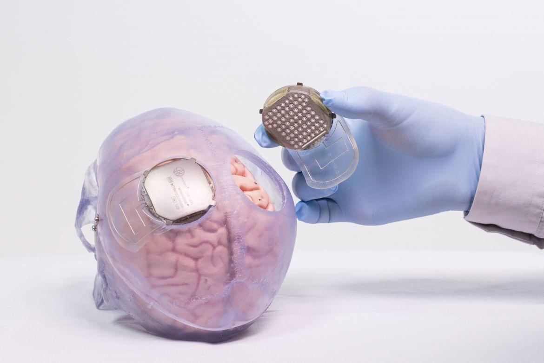 脳に埋め込むセンサー