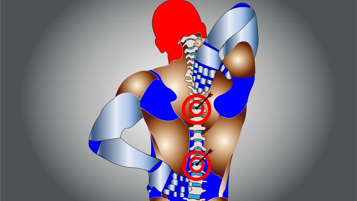 身体の歪みを診断するAI(人工知能)を使った事例まとめ