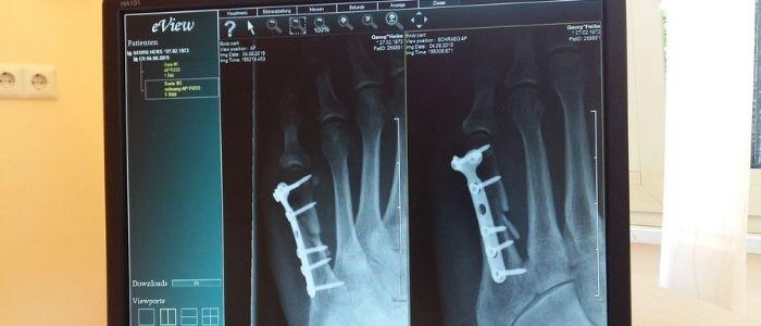 骨折・脱臼のイメージ